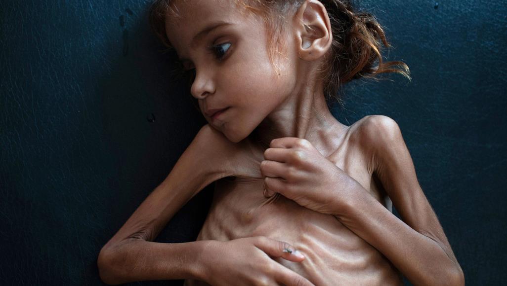 ذا أتلانتيك: ترامب متواطئ مع السعودية في تجويع اليمن