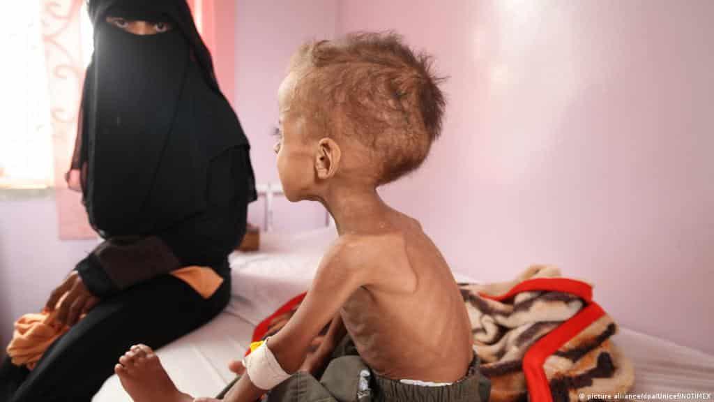 دعوى للمحكمة الجنائية الدولية ضد التحالف السعودي في الحرب على اليمن